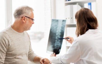 Espondilitis anquilosante: todo lo que debes saber
