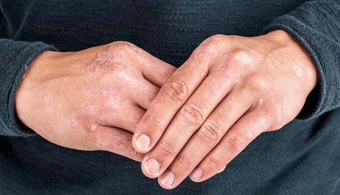Un comportamiento defectuoso de las células madre podría ser la causa de la psoriasis
