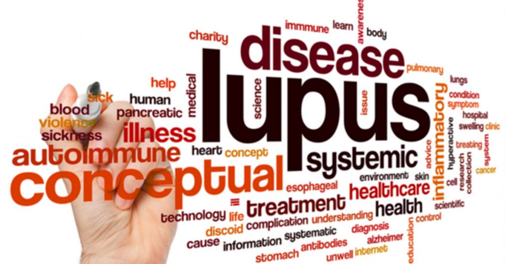 Tratamiento para lupus eritematoso sistémico ante el coronavirus