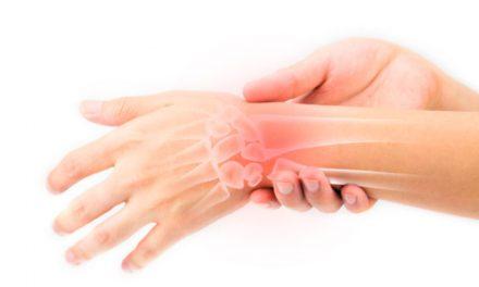 Causas y señales de alerta sobre la artritis reumatoide