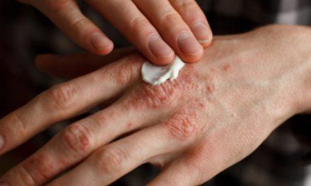 Aprueban efectiva opción terapéutica para la artritis psoriásica