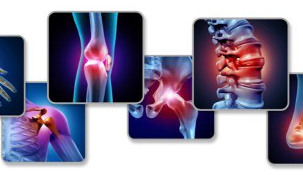 Dolores reumatológicos asociados al cáncer