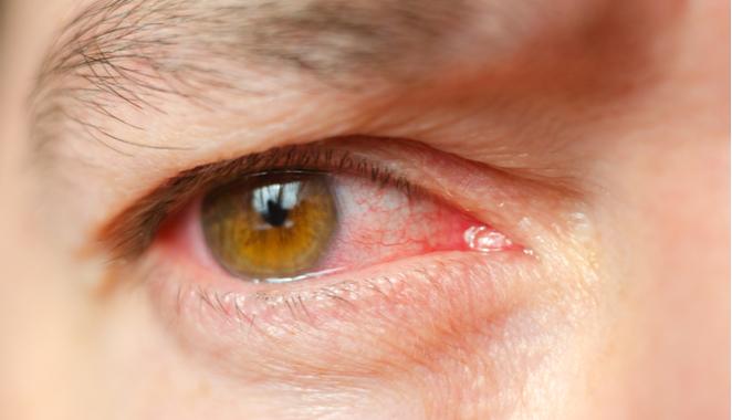 Artritis y artralgia causados por la enfermedad de BehÇet : definición y síntomas