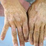 Esclerodermia afección a causa del colágeno