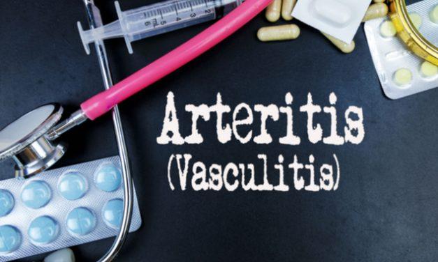 La arteritis de Takayasu enfermedad que daña los vasos sanguíneos