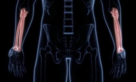 La osteopenia puede llegar a ser osteoporosis