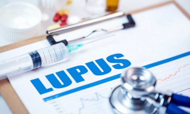 El lupus eritematoso sistemático: una enfermedad multisintomática
