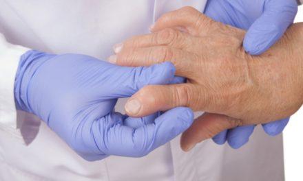 La poliartritis un padecimiento que afecta directamente las articulaciones y acciones motoras