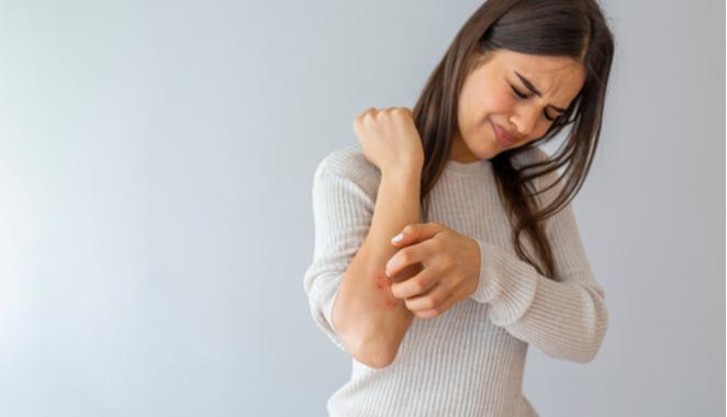 Psoriasis y artritis