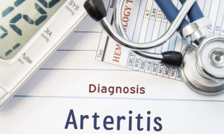 La arteritis de células gigantes  y la inflamación de las arterias