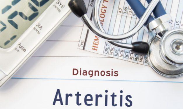 La arteritis de células gigantes  y la inflamación de las arterias