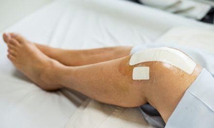 Riesgos de una cirugía temprana de reemplazo de rodilla