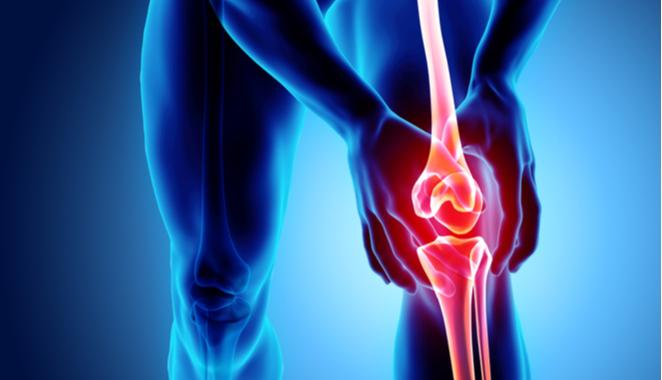Condropatía rotuliana daño en rodillas por alteración en el cartílago