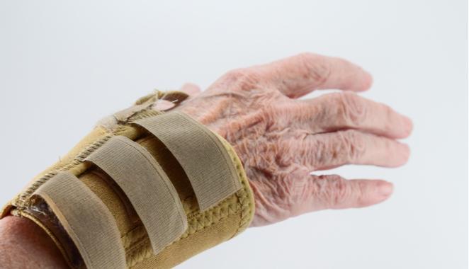 El reumatismo palindrómico