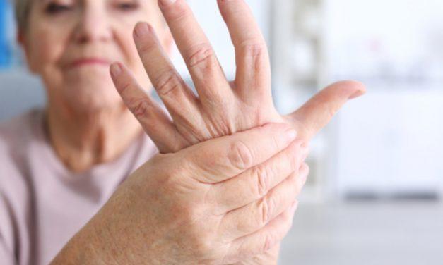Enfermedad de Dupuytren: fibrosis en las manos que limita el movimiento de los dedos