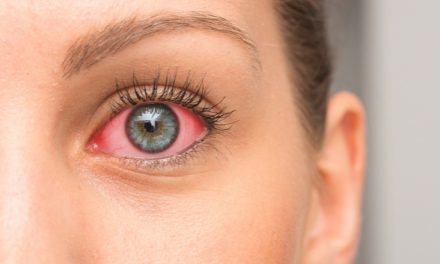 Así la artritis afecta la vista