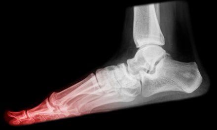 Neuroma de Morton: lesión en los dedos de los pies