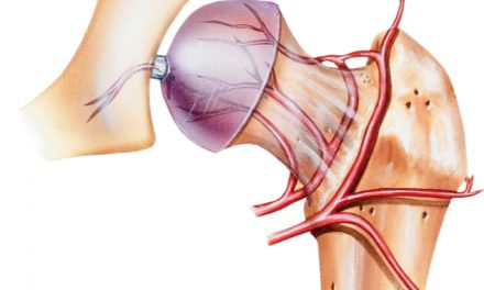 La osteonecrosis daño total de los huesos
