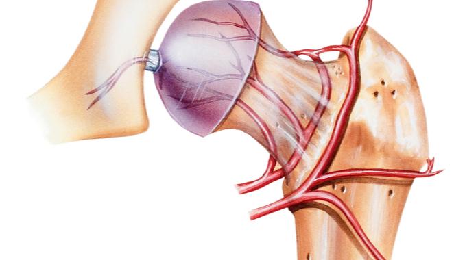 la osteonecrosis