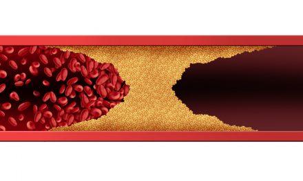 Poliarteritis nodosa: inflamación vascular como causa de la inflamación articular