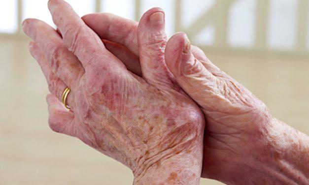 Artritis psoriásica o lupus