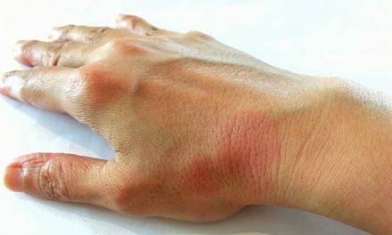 Avances en la investigación del lupus eritematoso mejoran significativamente los resultados del tratamiento