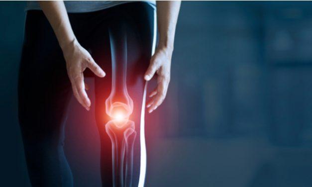 Personas con osteoartritis de rodilla experimentan diferentes tipos de dolor