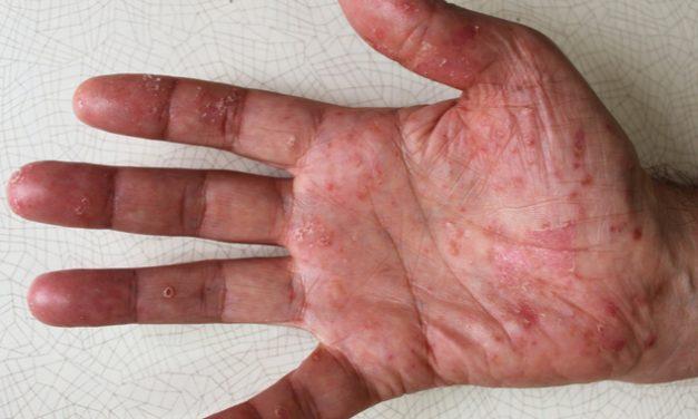 Pustulosis palmoplantar en manos y pies
