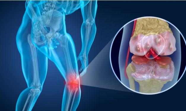 Nuevos tratamientos regenerativos para combatir la artrosis