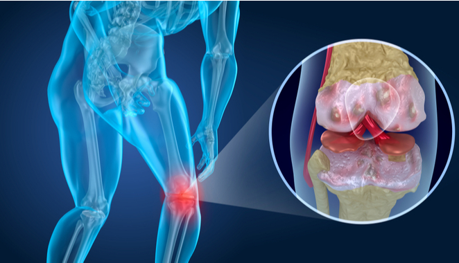 Tratamiento cartilaginoso para la artrosis