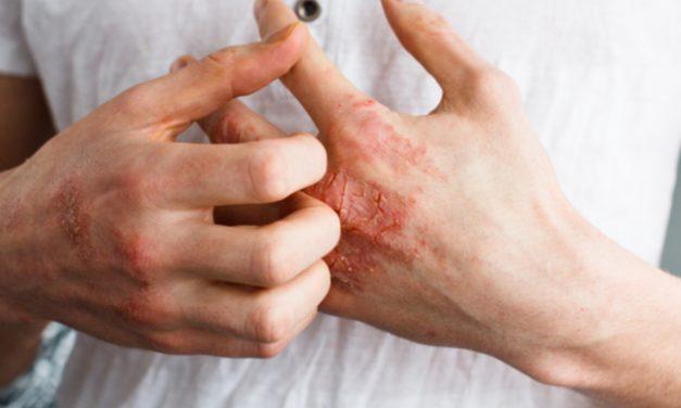 Diferentes tipo de psoriasis que pueden afectar