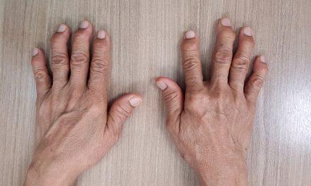 Reumatóloga explica la diferencia entre la artritis reumatoide y la artritis degenerativa