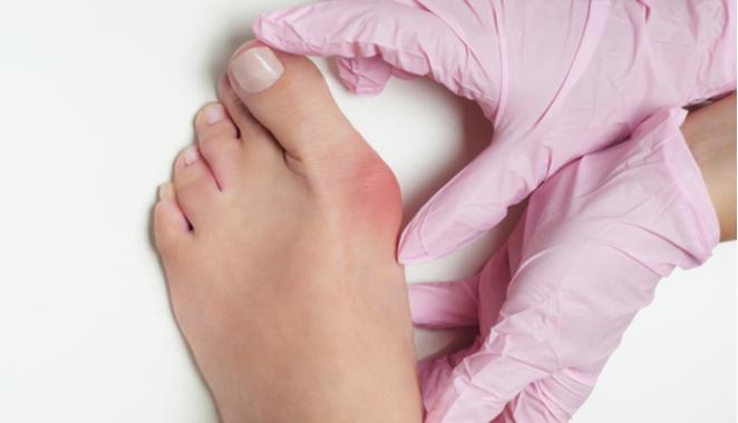 Cómo prevenir los dolorosos y antiestéticos juanetes