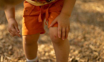 Rodillas valgas en niños : ¿Cuándo preocuparse?
