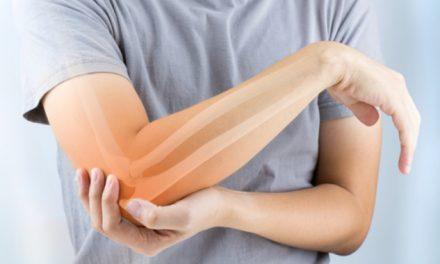 """Dr. Anaya: """"Pacientes con artritis reumatoide pueden desarrollar poliautoinmunidad"""""""