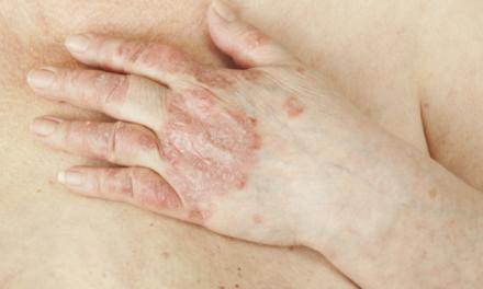 6 factores que aumentan el riesgo de desarrollar artritis psoriásica