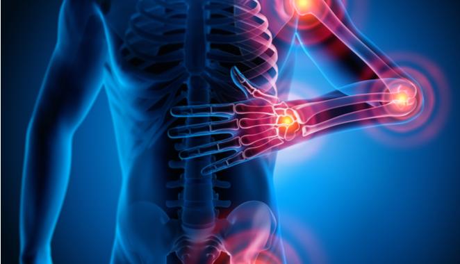 Uso alternativo de la colchicina podría beneficiar a pacientes autoinmunes o con enfermedades inflamatorias