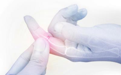 Artritis reumatoide, signos de alerta para un diagnóstico oportuno