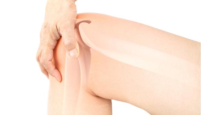 La investigación de nuevos tratamientos para la artritis  reumatoide da un salto importante