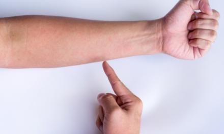 Vasculitis, cuando los vasos sanguíneos se inflaman