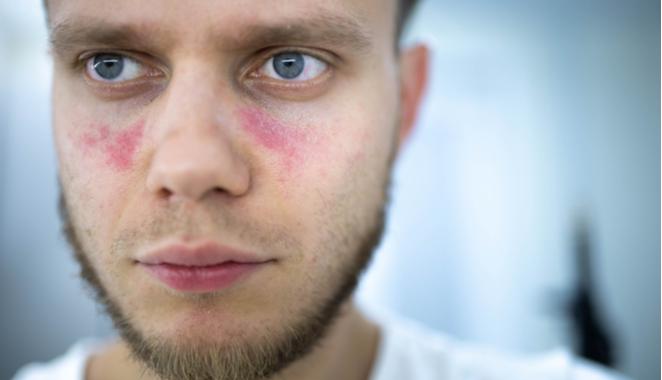 Avances en la medicina para contrarrestar el lupus eritematoso sistémico