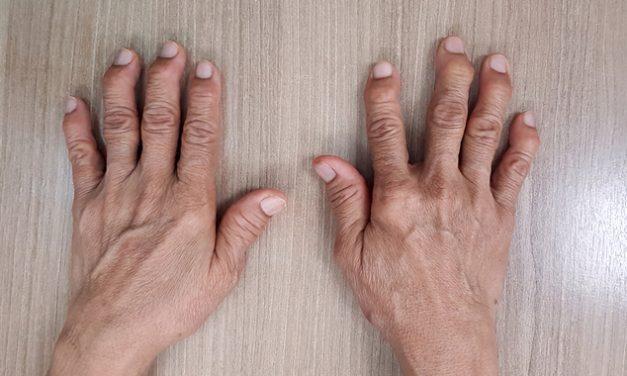 ¿Cuál es la diferencia entre artritis reumatoide y osteoartritis?
