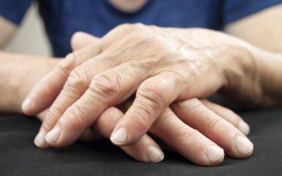 La diferencia entre la artritis reumatoide y la artritis degenerativa
