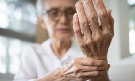¿Qué factores influyen sobre la adherencia al tratamiento en pacientes con Artritis Reumatoide?