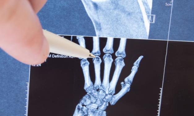 ¿Qué es la Artritis idiopática juvenil?