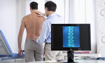 Espondilitis Anquilosante: más que un simple dolor en la espalda