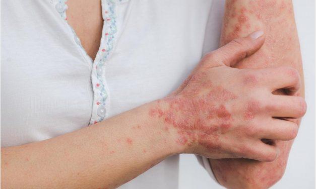 Estos son los síntomas de la psoriasis