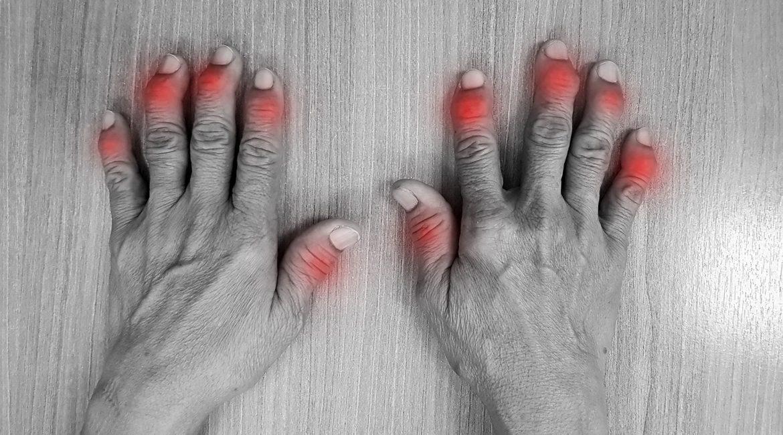 Fármacos con cannabis podrían servir para aliviar el dolor y la inflamación de la artritis