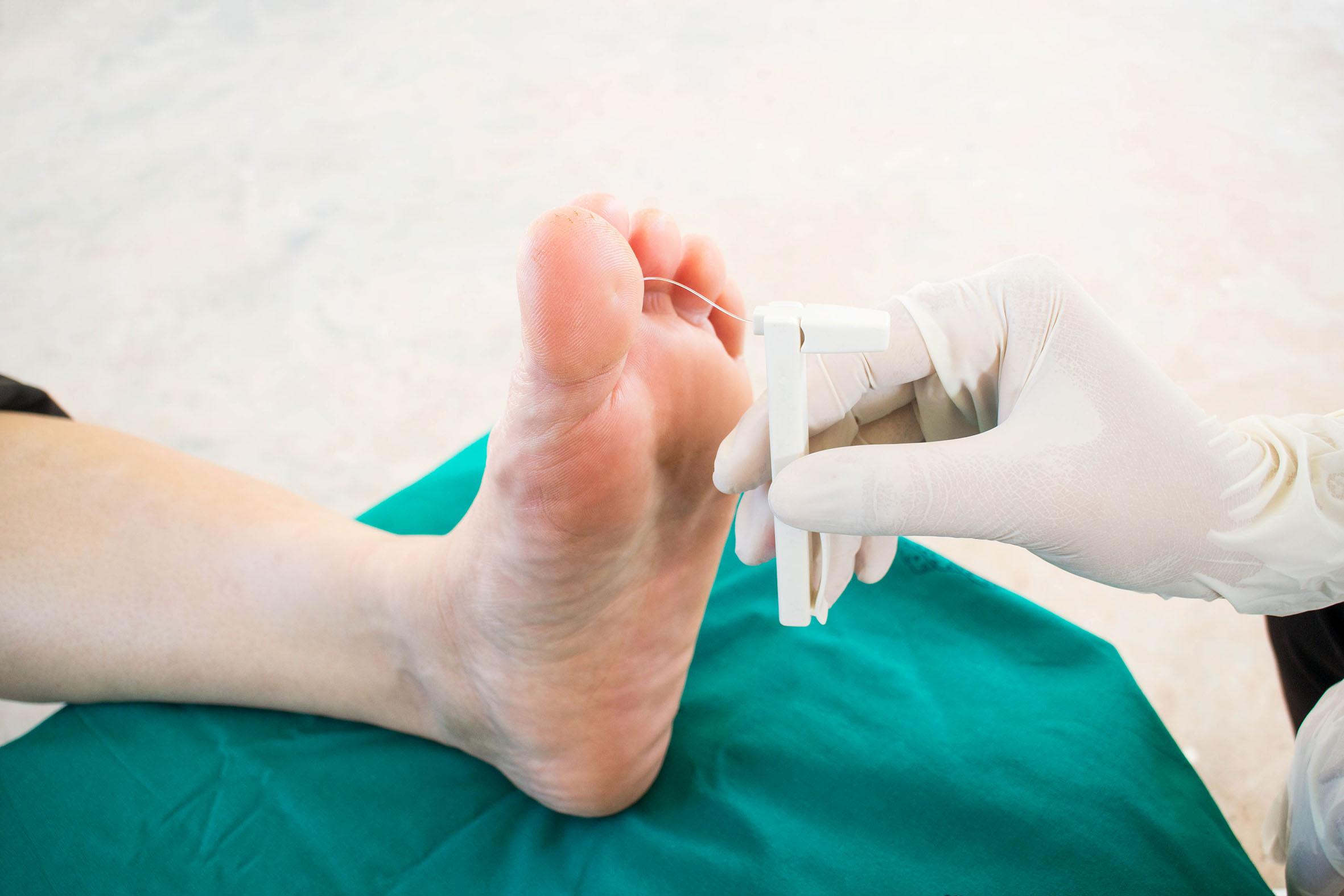 Pie reumático: síntomas y tratamiento